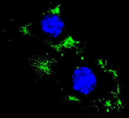 Cells stained with lysenin toxin