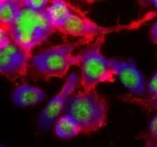 Macrophage lipids